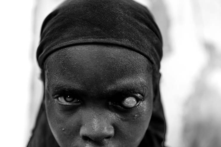 A displaced girl, who suffers from infectious disease and famine, looks on in Badbadoo camp in Mogadishu, Somalia.