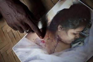 Nur Islam pointing to the gunshot wound of his daughter. And he questions, how did the bullet reached Felani's chest because Felani was on top of the barbed wires?